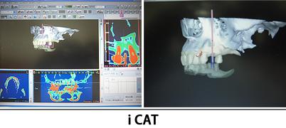 CTを診断ソフトで診断した画像 iCAT
