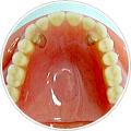 義歯(入れ歯) 磁性アタッチメント