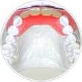 義歯(入れ歯) ノンクラスプデンチァー