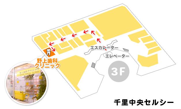豊中市 歯科/千里中央の野上歯科クリニック セルシービル3F