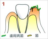 歯周病の進行の仕方01