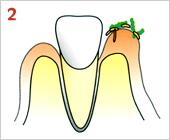 歯周病の進行の仕方02