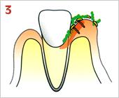 歯周病の進行の仕方03