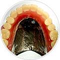 義歯(入れ歯) 金属床