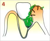 歯周病の進行の仕方04