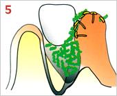 歯周病の進行の仕方05