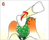 歯周病の進行の仕方06